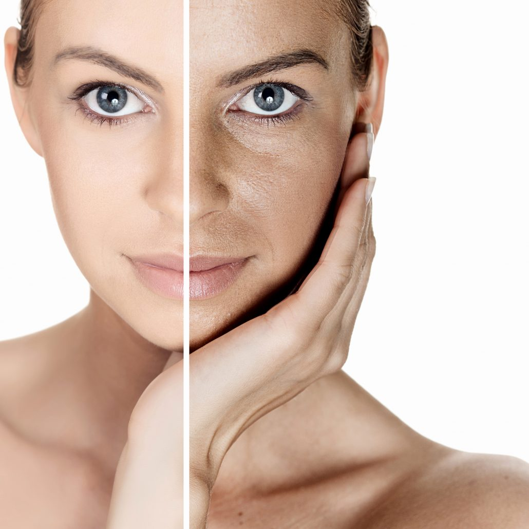 قبل و بعد از مصرف از محصولات کلاژن ساز